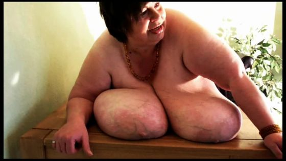 Macromastia Large Breasts