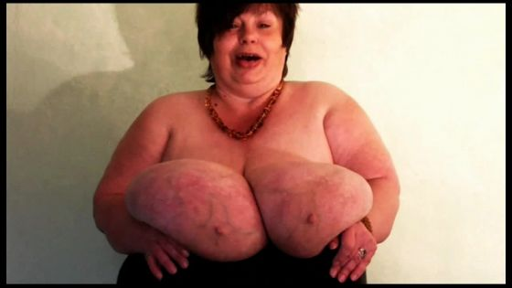 Karola Gigantomastia Large Breasts